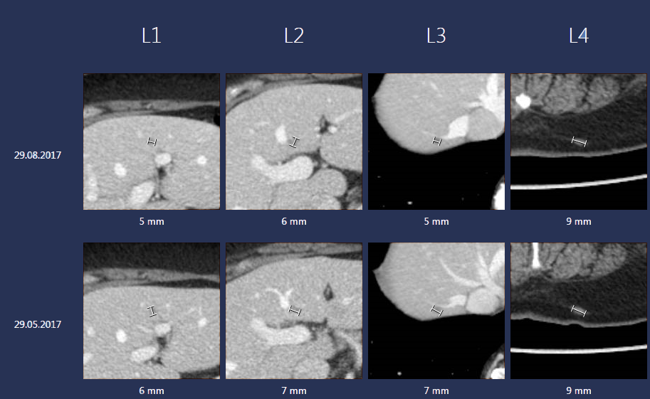 A screenshot of the Sectra Lesion Tracking tool