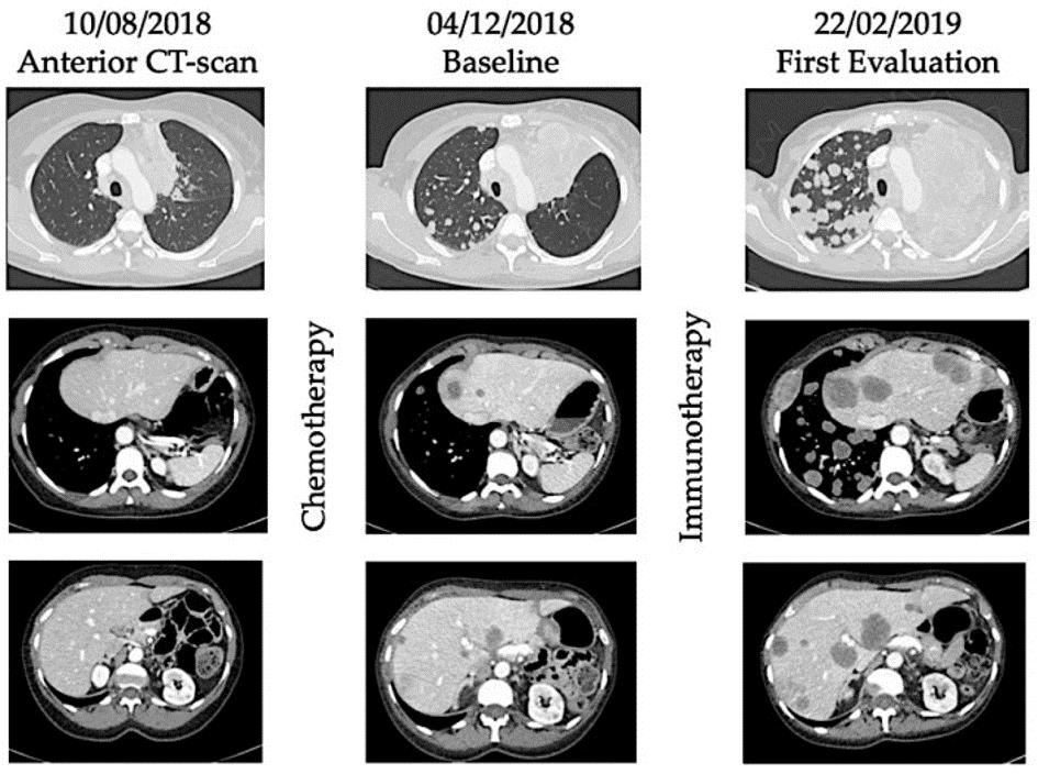 Hyperprogression under immunotherapy